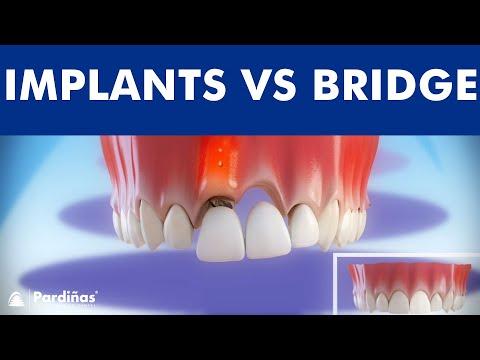 Dental Implants VS Tooth bridge - Comparison ©
