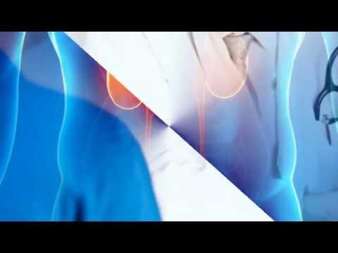 Лечение простатита бобровой струей схема лечения