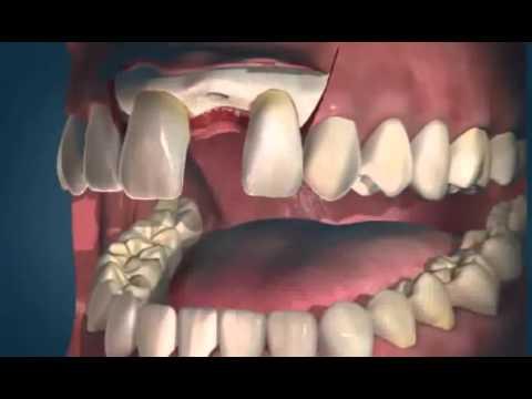 Имплантация зубов  Имплантаты Alpha Bio