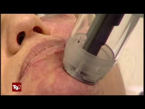 Come togliere posti di pigmentary sopra un labbro superiore