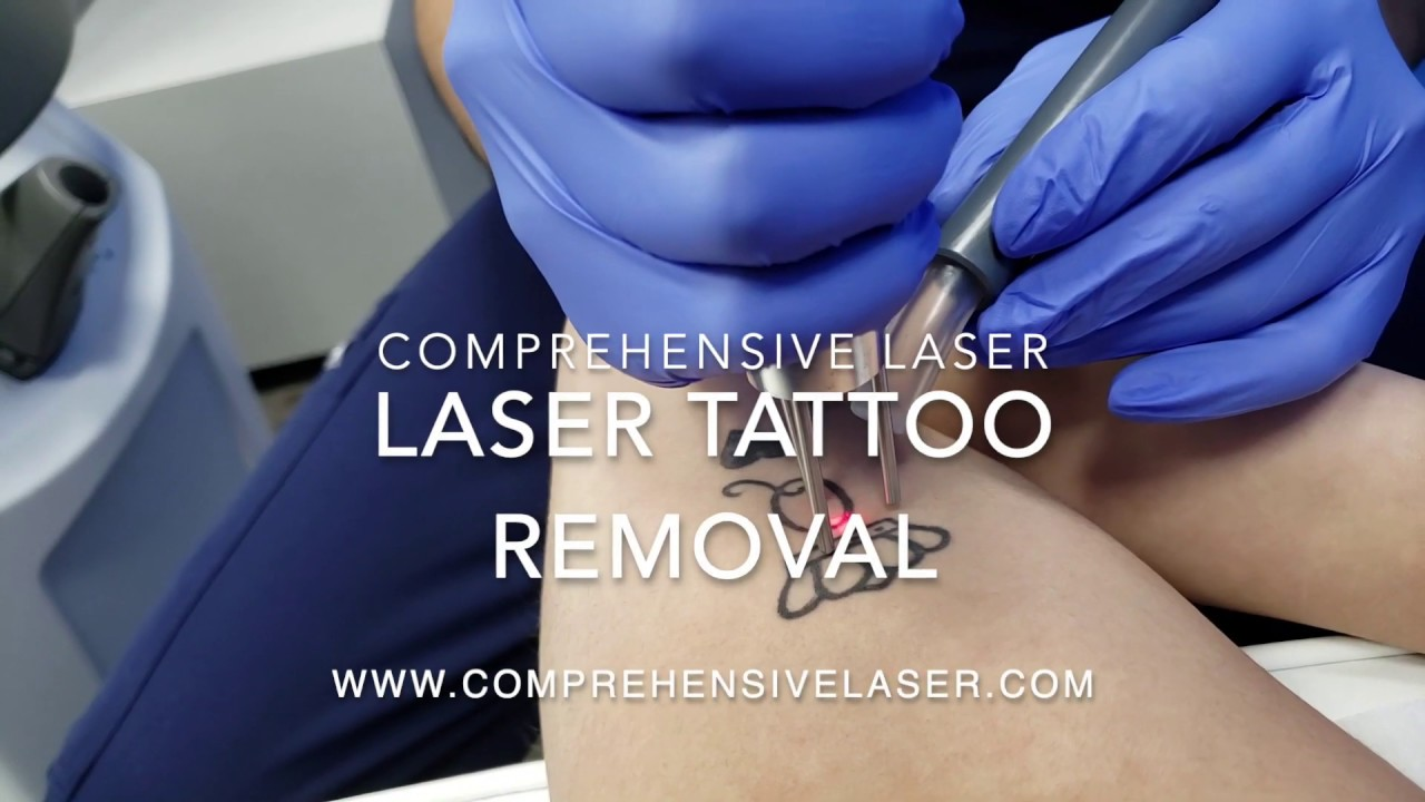Best Laser Tattoo Removal Baltimore