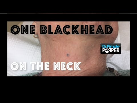 Extracting a Neck Blackhead