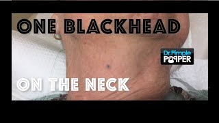 One blackhead on the neck extracted