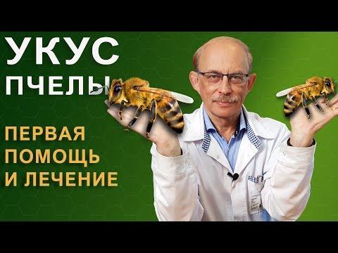 Укус пчелы - что делать, как снять опухоль, опасные симптомы, аллергия