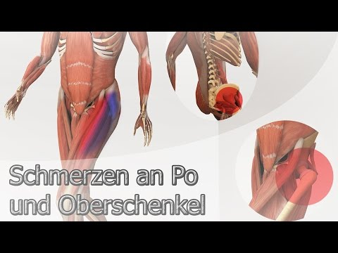 Trainingsvideos an der lumbalen sakralen Osteochondrose Video