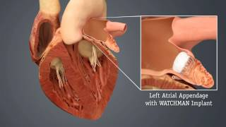 HCA Virginia – WATCHMAN Video 2: Left Atrial Appendage Closure Device