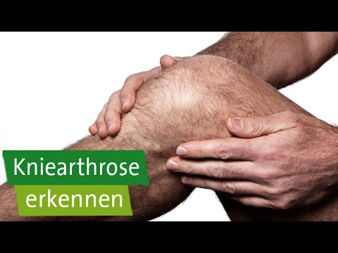 Salbe lumbalen Osteochondrose