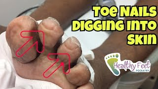 Nails Curling Into Toes - Nail Trimming for Diabetic. Ingrown Nails at the Ends of the Toe.
