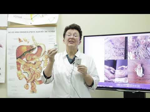 Почему проявляются вместе заболевания суставов и варикозное расширение вен