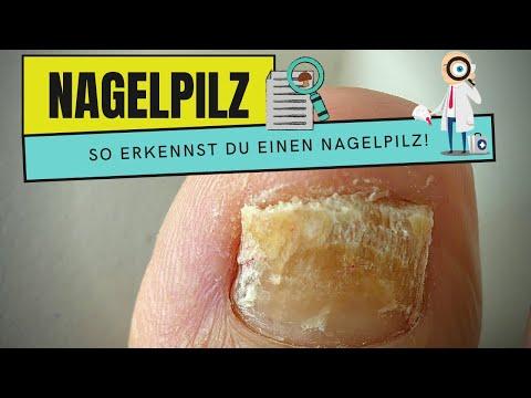 Gribok des Nagels auf der Hand zu heilen