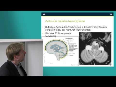 Hypertonie-Syndrom Risikofaktoren