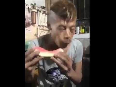 Gurken reduzieren Blutzucker