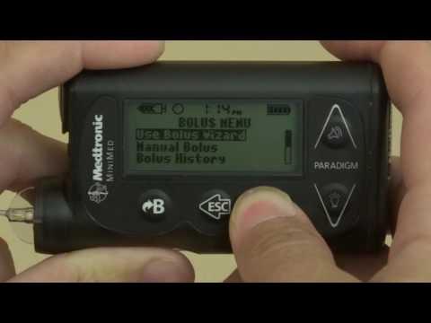 Mitnahmen in army diabetes gelöst