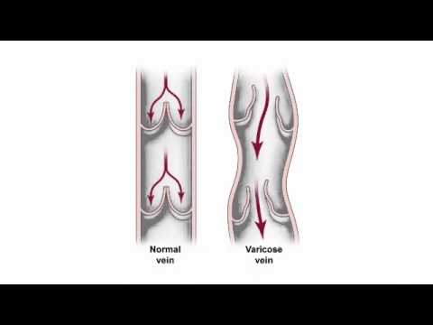 La posizione di vene fa male e spara