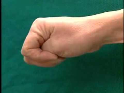 Il fungo di unghie per trattare battute di entrata