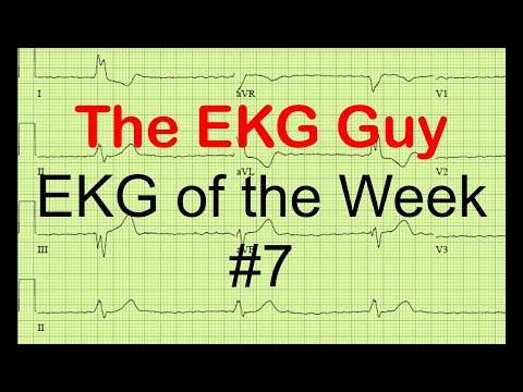 EKG of the Week #7