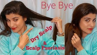 SCALP PSORIASIS & DRY SCALP l HAIR TREATMENT