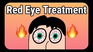 Red eye treatment explained | How to Get Rid of Red Eyes?
