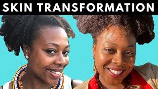 My Secret to Flawless Skin | Skin Care Regimen for Black Women