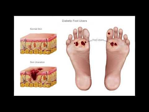 Дали е възможно да поставите имплант зъба ако диабет