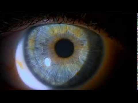 A szemölcsök fertőzőek