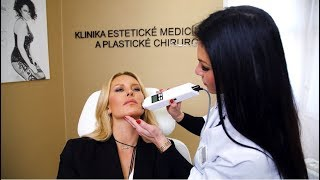 Simona Krainová podstúpila 3 skrášľujúce procedury