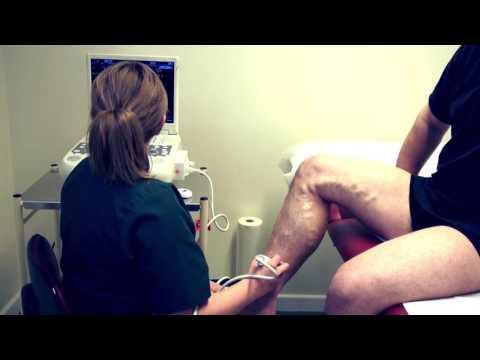 Sintomi di trombosi venose