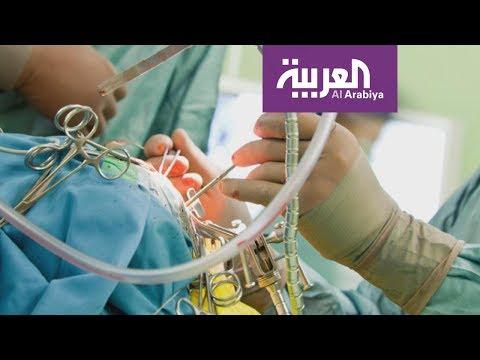 العرب اليوم - شاهد: علاج جديد لمصابي مرض الشلل الرعاش