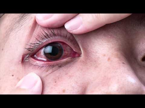 Video Ask The Expert - Dr. Gabriel Sosne - Pink Eye and Viral Eye Infections