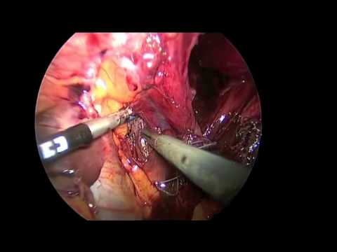 Laparoscopic Closure Of Large Hiatal Defect