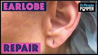 After Years of Heavy Earrings... Earlobe Repair
