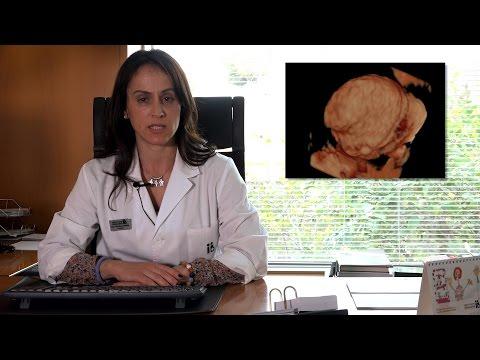 Cistoadenoma: Cos'è? Come mi viene diagnosticato? Qual'è il suo trattamento?
