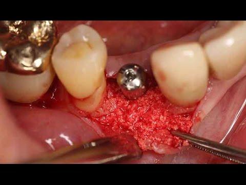 Clinical application of Dentium Implantium ll system