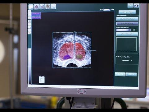 Лечение на рак на простатата протокол
