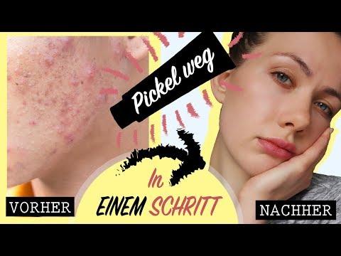 SCHNELLES & WIRKSAMES Mittel gegen PICKEL - Beste Methode für unreine Haut