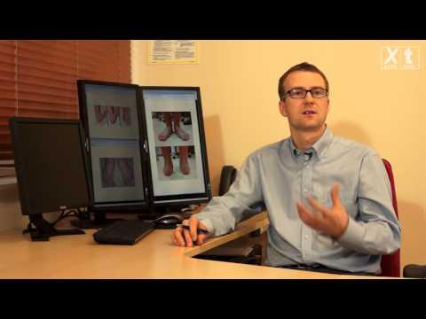 Terapia ruchowa w ploskovalgusnoy deformacjami stóp