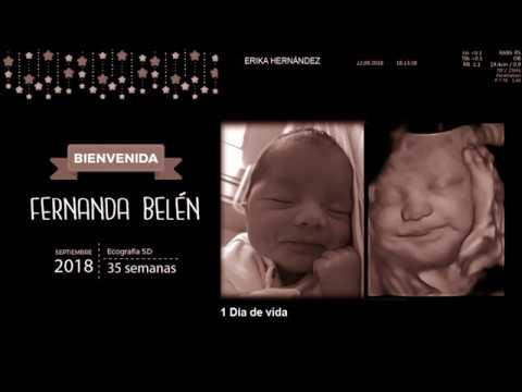 Imagenes de ecografias de 35 semanas de embarazo