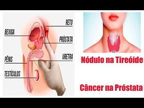 Egli trattamento clinica della prostata