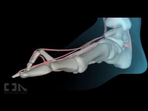 Gimnastyka dla dzieci 1,5 roku z koślawego zniekształcenia stopy