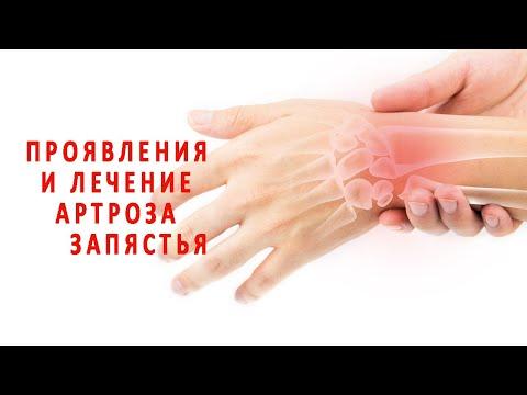 Проявления и лечение артроза запястья