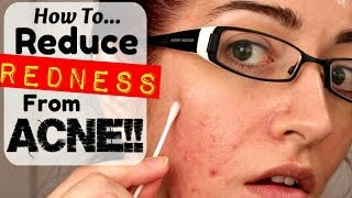 HOW TO: REMOVE REDNESS FROM ACNE & SCARRING! *REQUESTED!*