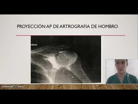 Boli ale articulațiilor și ale coloanei vertebrale