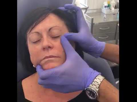 Procedure demonstratio - Medaesthetics