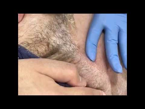 Мужчин зоны эпиляция интимной у