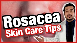 Rosacea Skin Care Tips | How to Get Rid of Rosacea FAST (2020)