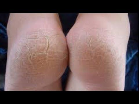 Artroza deformantă a primei etape a articulației genunchiului