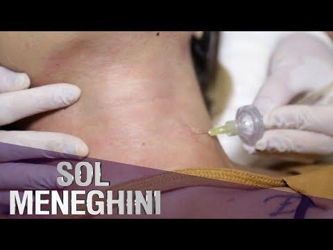 Tratamentul artrozei genunchiului cu un bioptron