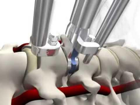 Resonancia magnética de la articulación de la cadera durante el procedimiento