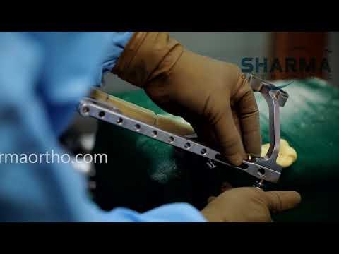 Ligamentul cruciat anterior al articulației genunchiului