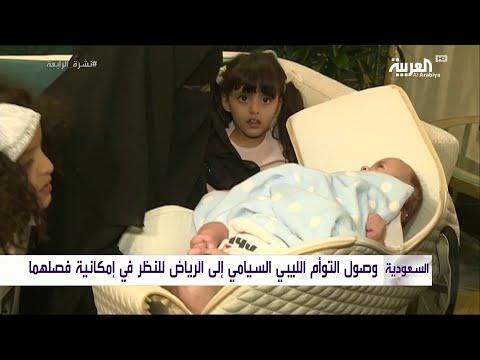 العرب اليوم - وصول التوأم السيامي الليبي إلى السعودية لفصله